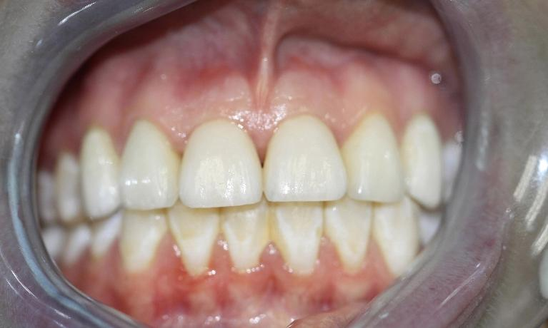 Tammie-Dental-Implants-After-Image
