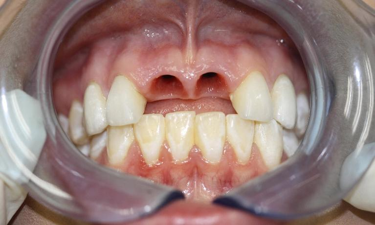 Tammie-Dental-Implants-Before-Image